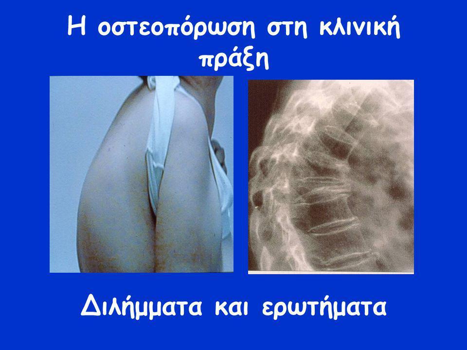 Η οστεοπόρωση στη κλινική πράξη