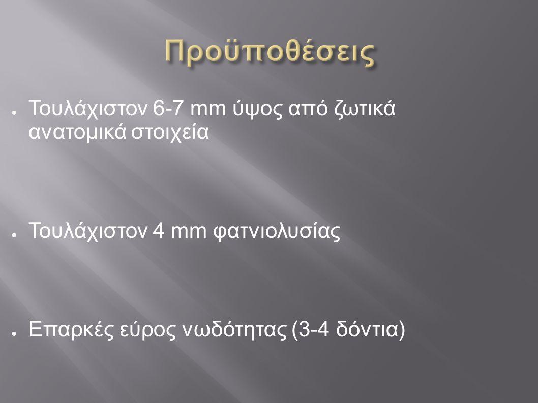 Προϋποθέσεις Τουλάχιστον 6-7 mm ύψος από ζωτικά ανατομικά στοιχεία
