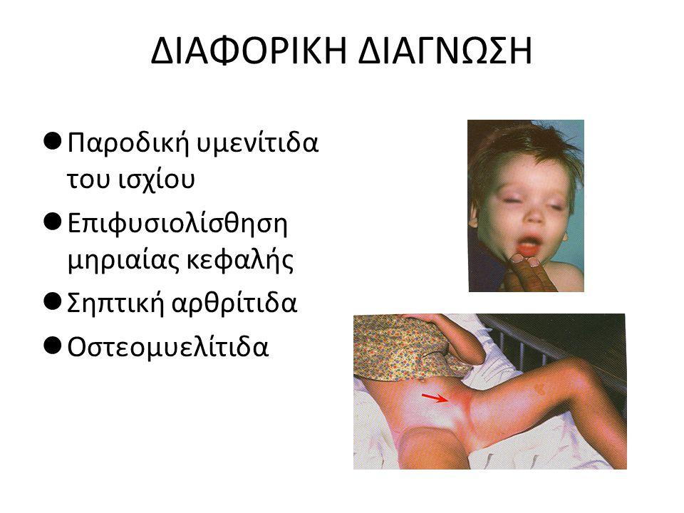 ΔΙΑΦΟΡΙΚΗ ΔΙΑΓΝΩΣΗ Παροδική υμενίτιδα του ισχίου