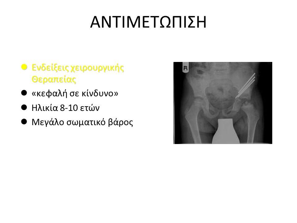 ΑΝΤΙΜΕΤΩΠΙΣΗ Ενδείξεις χειρουργικής Θεραπείας «κεφαλή σε κίνδυνο»