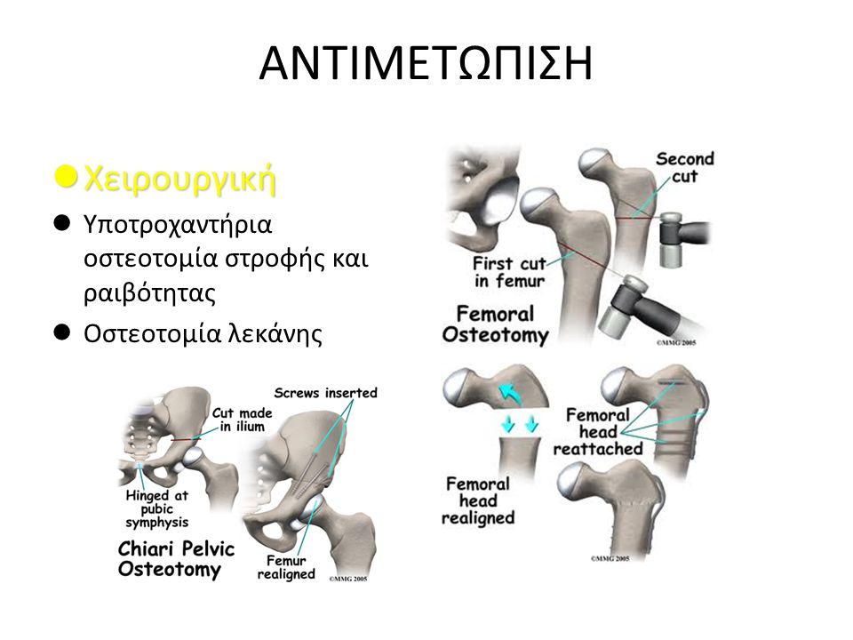 ΑΝΤΙΜΕΤΩΠΙΣΗ Χειρουργική