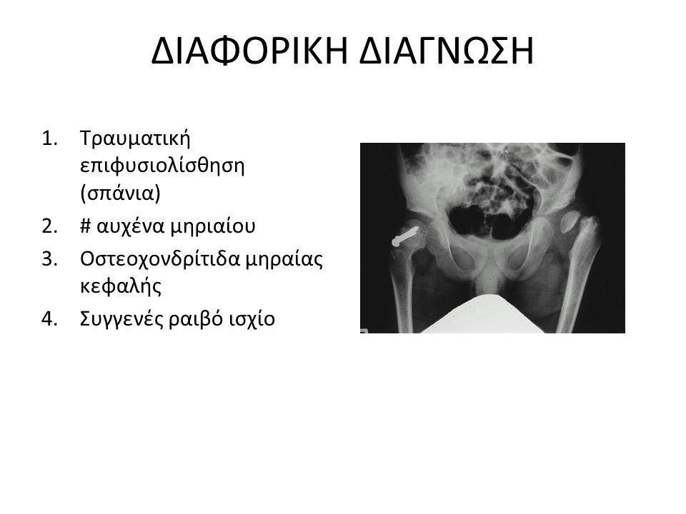 ΔΙΑΦΟΡΙΚΗ ΔΙΑΓΝΩΣΗ Τραυματική επιφυσιολίσθηση (σπάνια)