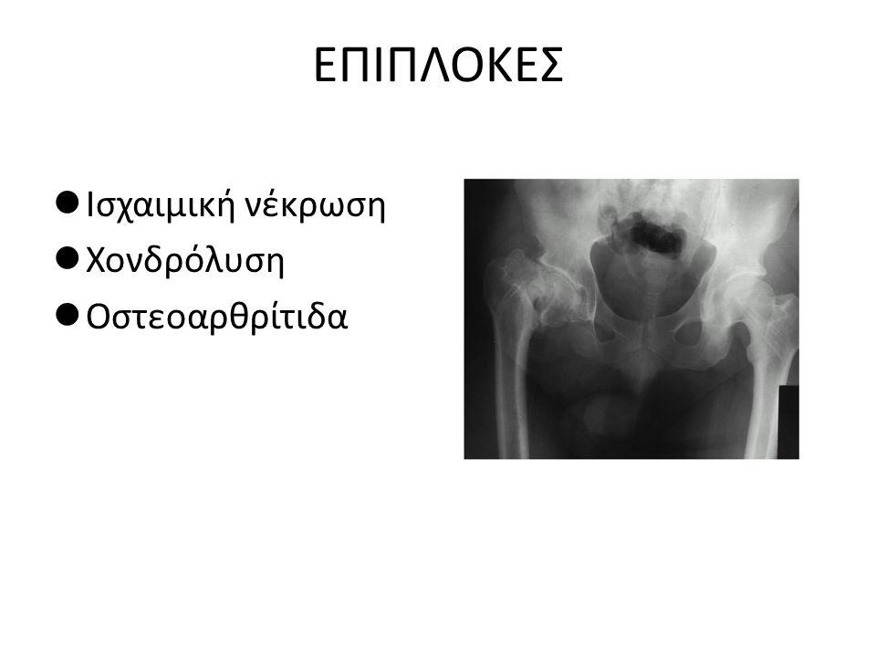 ΕΠΙΠΛΟΚΕΣ Ισχαιμική νέκρωση Χονδρόλυση Οστεοαρθρίτιδα