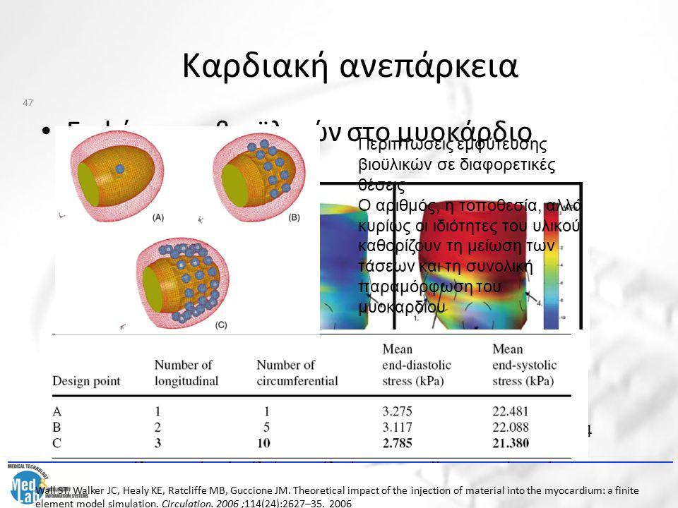 Καρδιακή ανεπάρκεια Εμφύτευση βιοϋλικών στο μυοκάρδιο