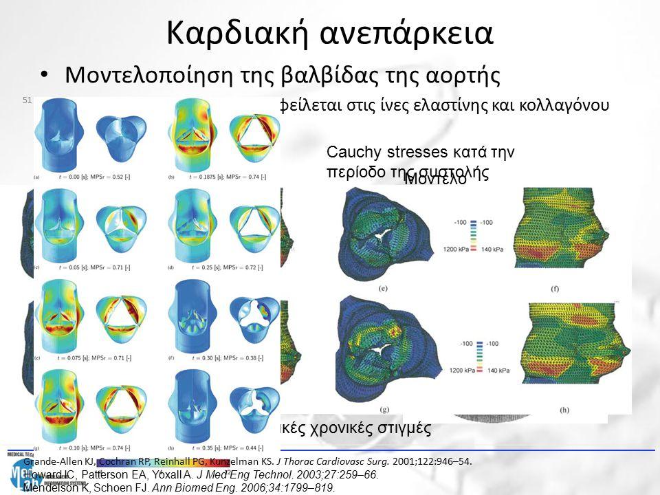 Καρδιακή ανεπάρκεια Μοντελοποίηση της βαλβίδας της αορτής