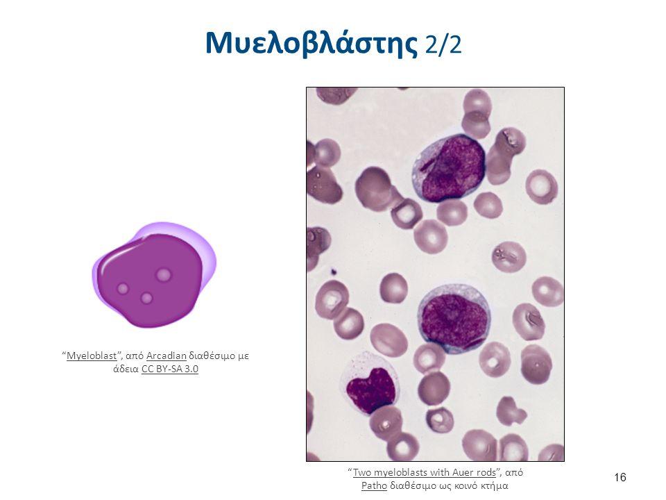 Προμυελοκύτταρο 1/2 Πρωτογενή κοκκία διαμέτρου 0.5μm.