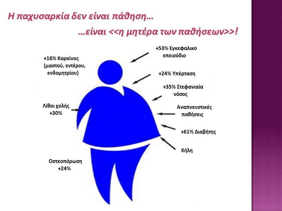 Η παχυσαρκία δεν είναι πάθηση…