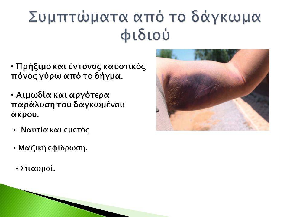 Συμπτώματα από το δάγκωμα φιδιού