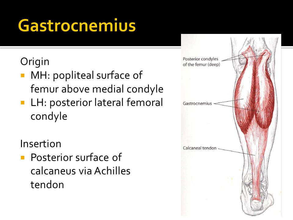 Gastrocnemius Origin. MH: popliteal surface of femur above medial condyle. LH: posterior lateral femoral condyle.