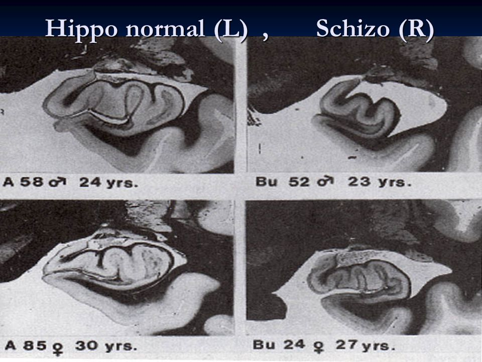 Hippo normal (L) , Schizo (R)