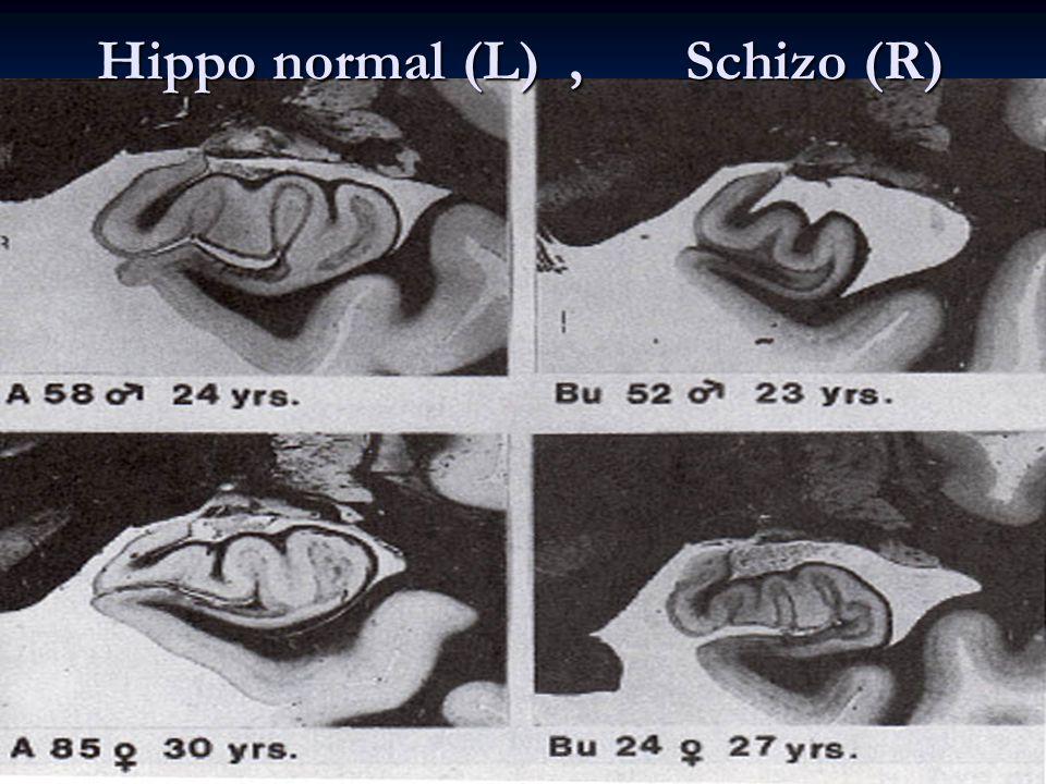 Hippo normal (L) , Schizo (R)