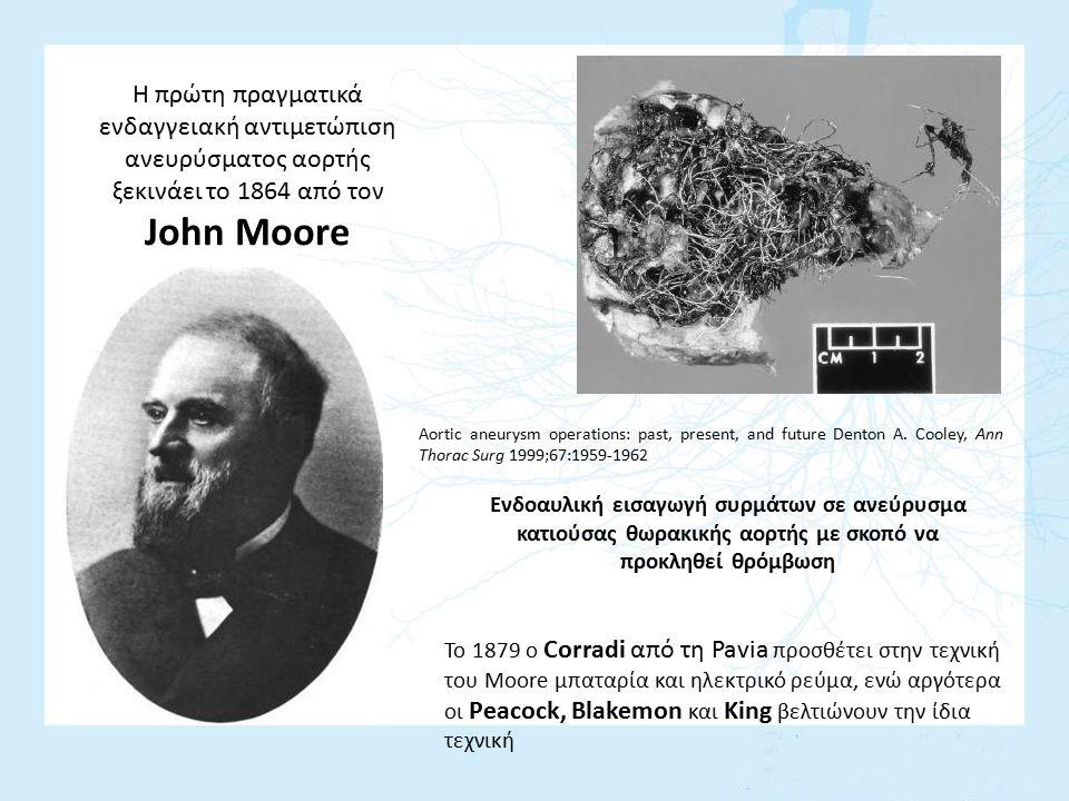 Η πρώτη πραγματικά ενδαγγειακή αντιμετώπιση ανευρύσματος αορτής ξεκινάει το 1864 από τον