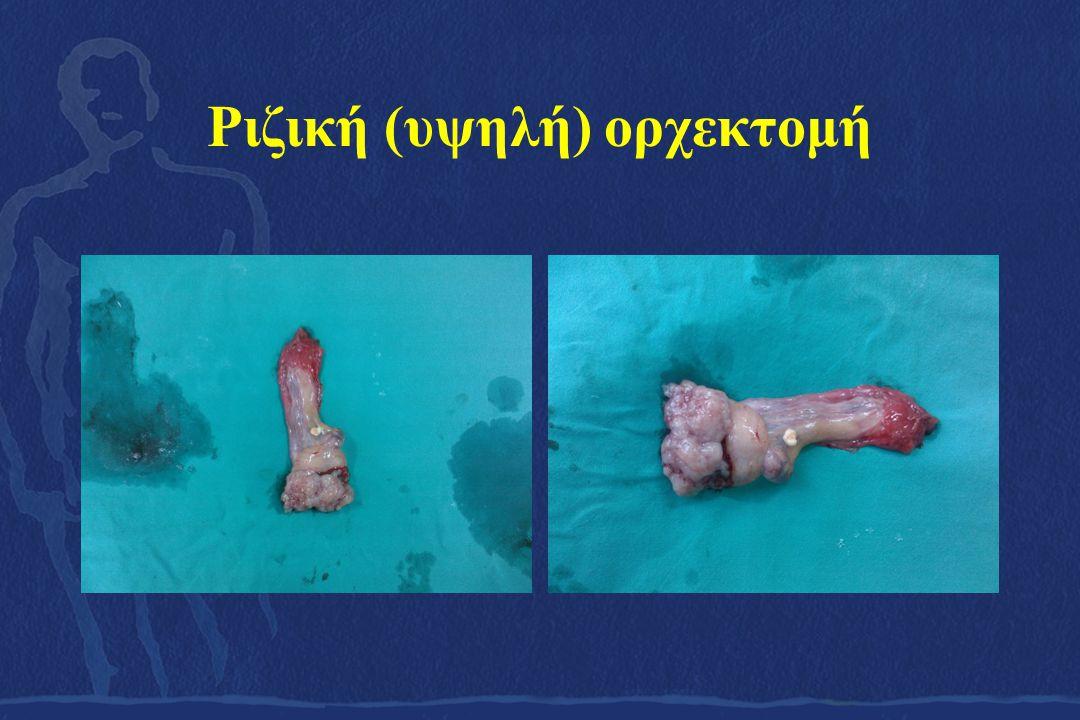Ριζική (υψηλή) ορχεκτομή