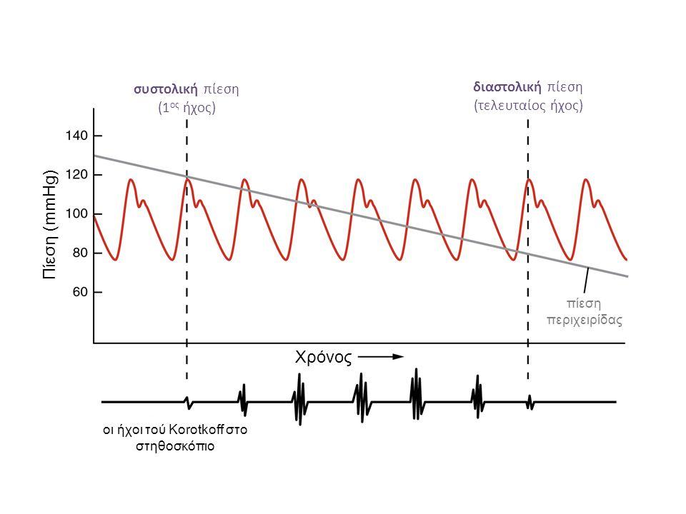 Πίεση (mmHg) Χρόνος συστολική πίεση (1ος ήχος)