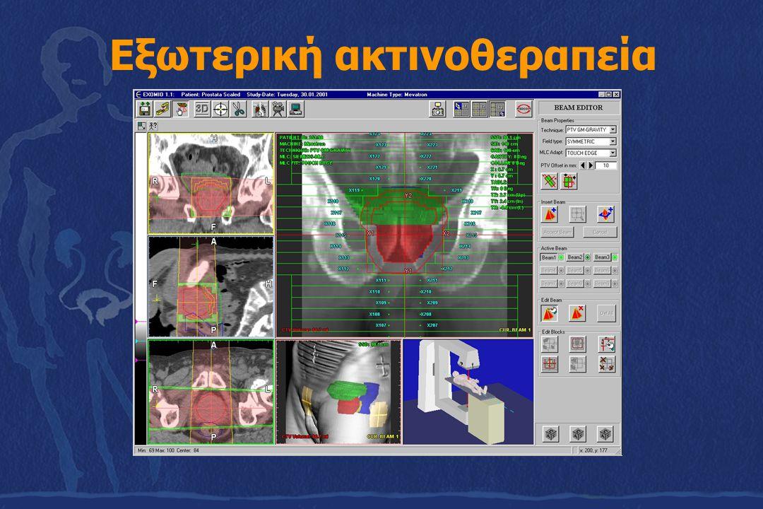 Εξωτερική ακτινοθεραπεία