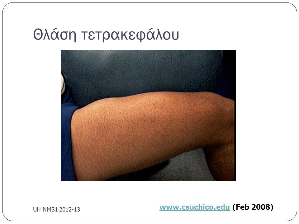Θλάση τετρακεφάλου UH NMS1 2012-13 www.csuchico.edu (Feb 2008)