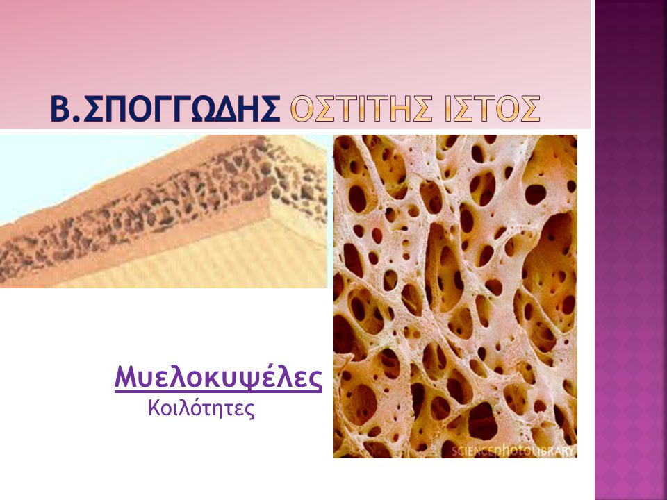 B.ΣΠΟΓΓΩΔΗΣ ΟΣΤΙΤΗΣ ΙΣΤΟΣ