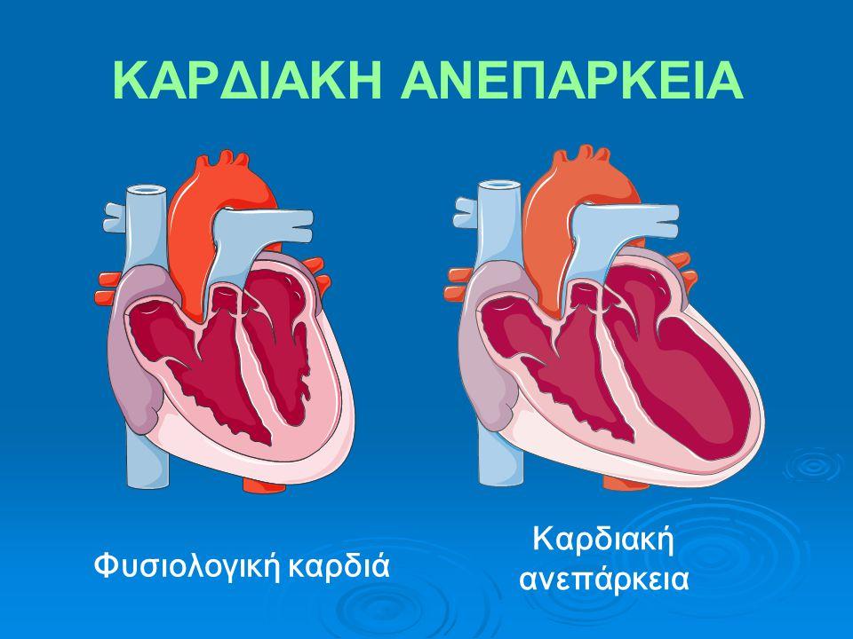 ΚΑΡΔΙΑΚΗ ΑΝΕΠΑΡΚΕΙΑ Καρδιακή ανεπάρκεια Φυσιολογική καρδιά