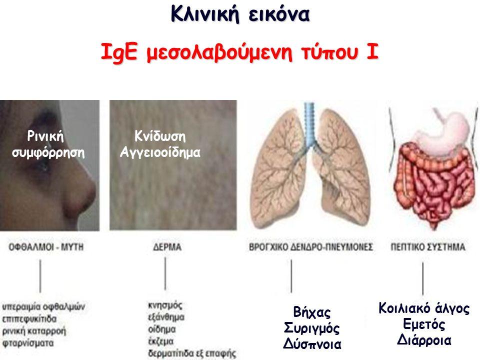 Κλινική εικόνα ΙgE μεσολαβούμενη τύπου I