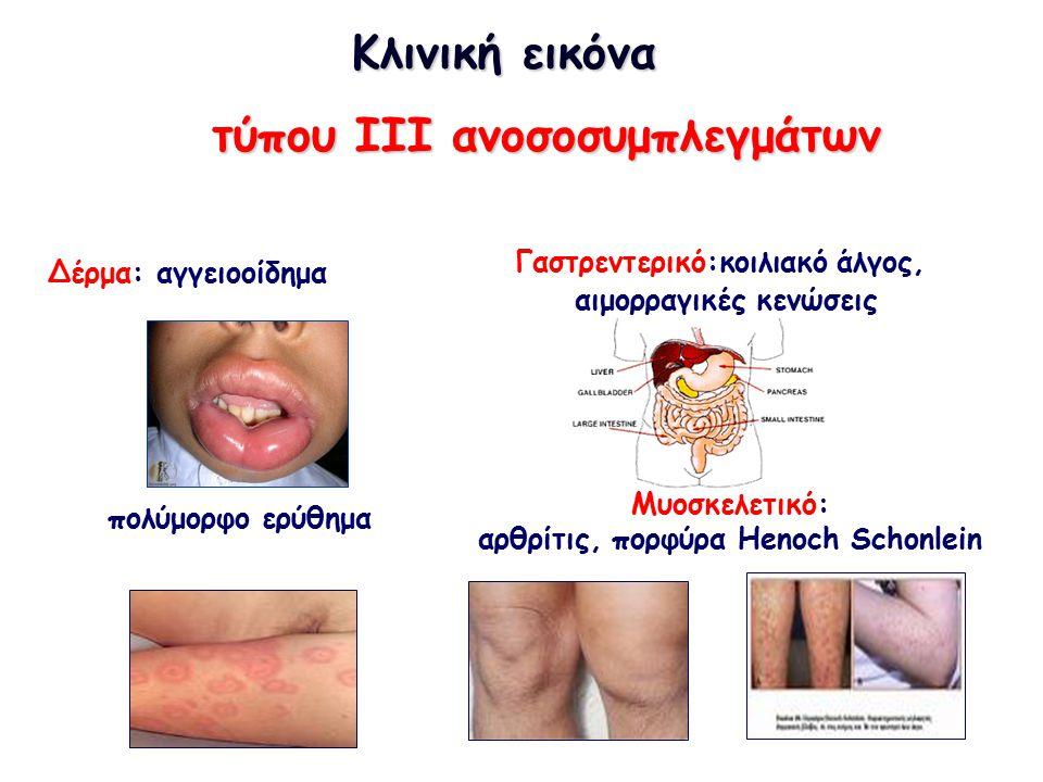 τύπου III ανοσοσυμπλεγμάτων