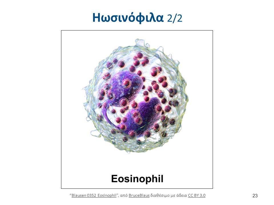 Κοκκία Ηωσινόφιλα Μείζων βασική πρωτεΐνη.