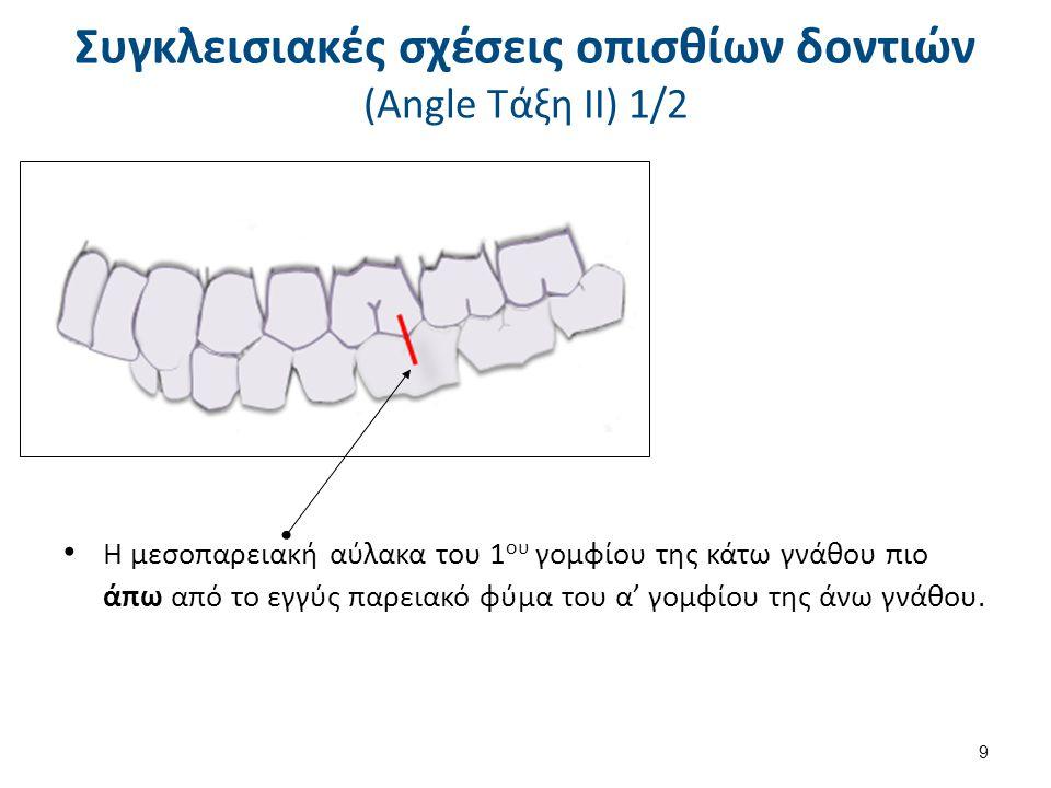 Συγκλεισιακές σχέσεις οπισθίων δοντιών (Angle Τάξη ΙΙ) 2/2