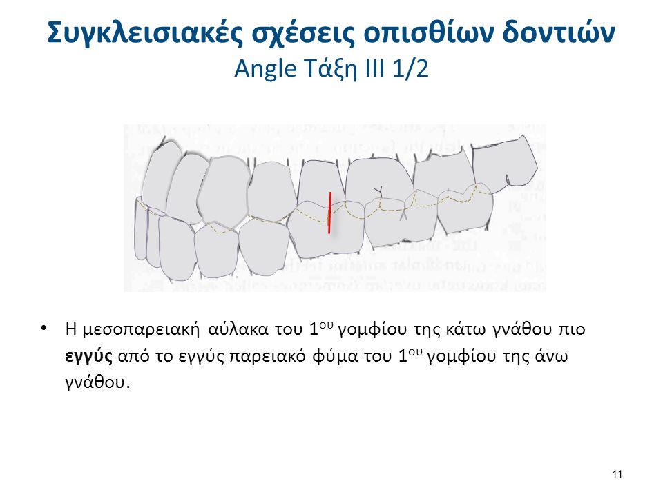 Συγκλεισιακές σχέσεις οπισθίων δοντιών Angle Τάξη ΙΙΙ 2/2