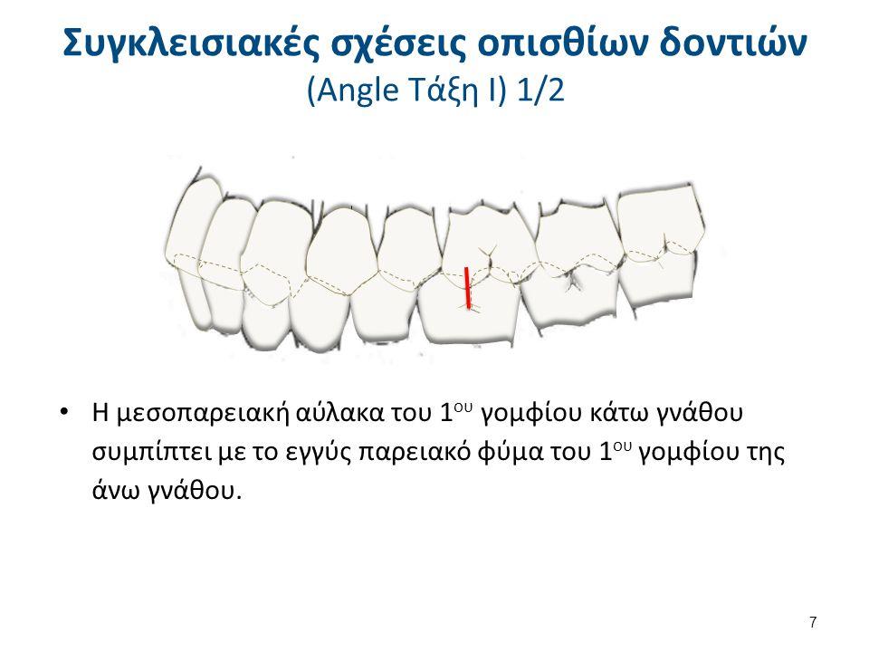 Συγκλεισιακές σχέσεις οπισθίων δοντιών (Angle Τάξη Ι) 1/2