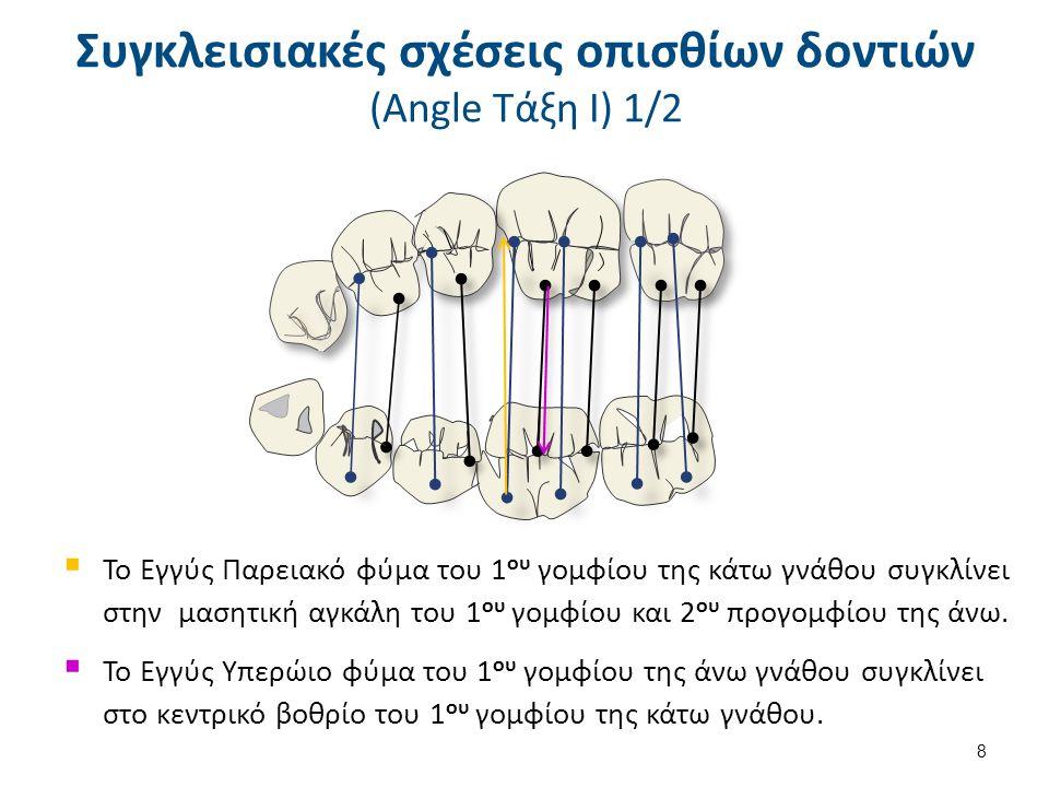 Συγκλεισιακές σχέσεις οπισθίων δοντιών (Angle Τάξη ΙΙ) 1/2