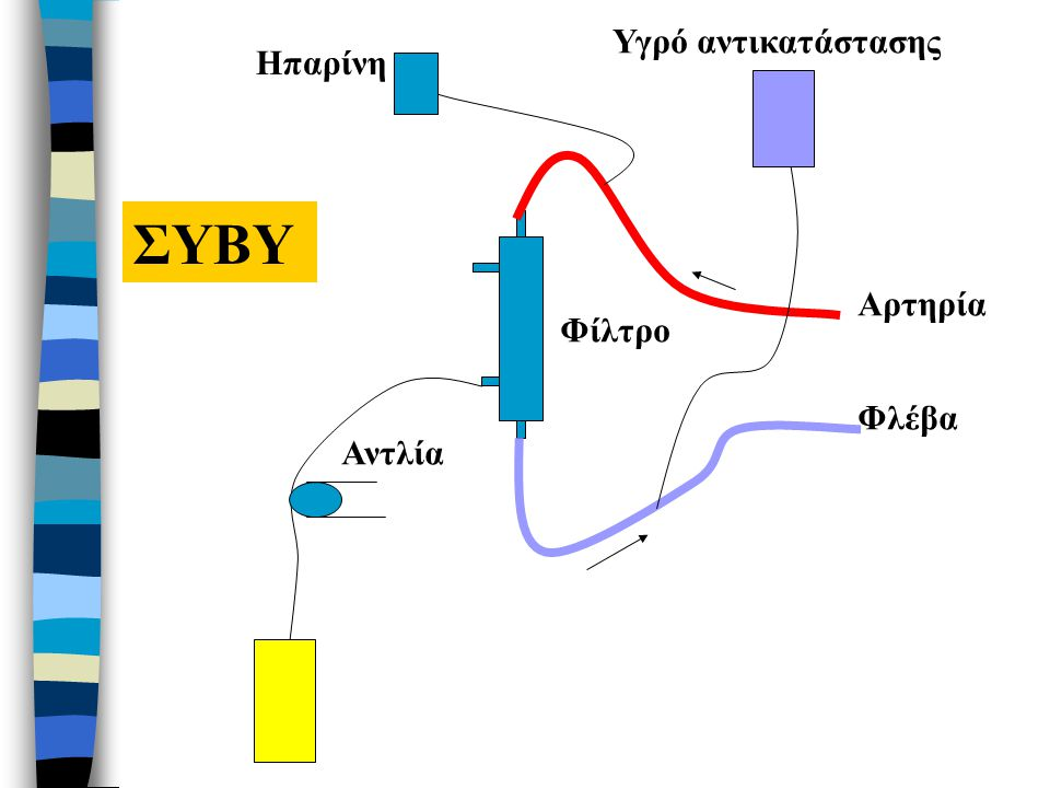 Υγρό αντικατάστασης Ηπαρίνη ΣΥΒΥ Αρτηρία Φίλτρο Φλέβα Αντλία