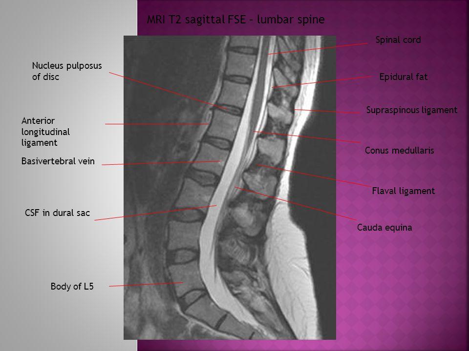 MRI T2 sagittal FSE – lumbar spine