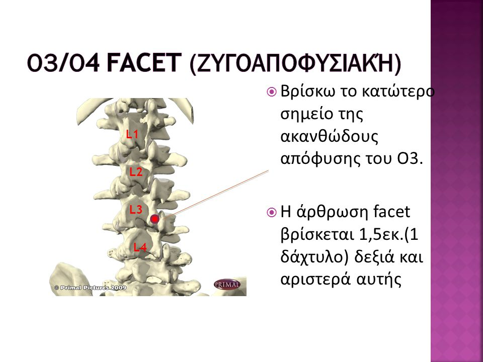 Ο3/Ο4 Facet (ζυγοαποφυσιακή)