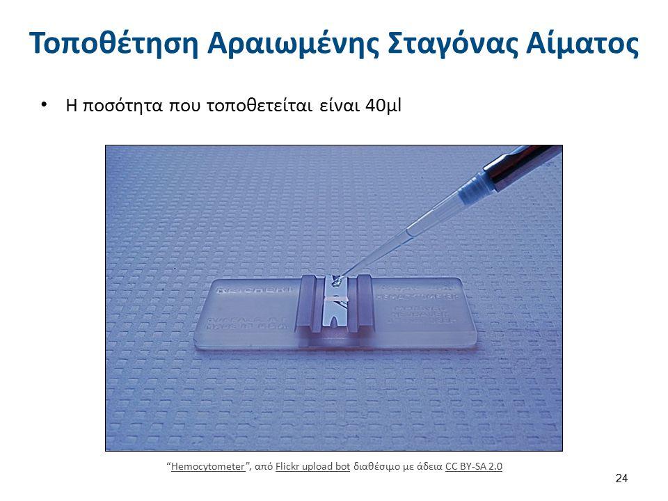 Μέτρηση Λευκών Αιμοσφαιρίων x 40