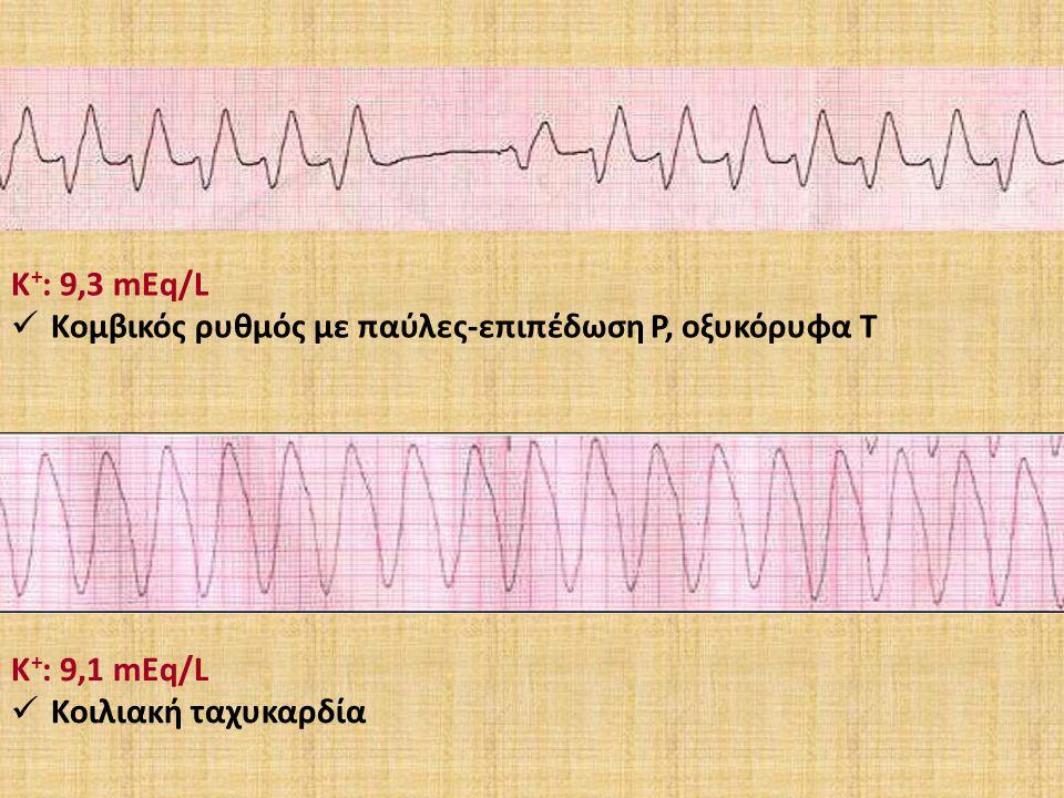 Κ+: 9,3 mEq/L Κομβικός ρυθμός με παύλες-επιπέδωση Ρ, οξυκόρυφα Τ Κ+: 9,1 mEq/L Κοιλιακή ταχυκαρδία