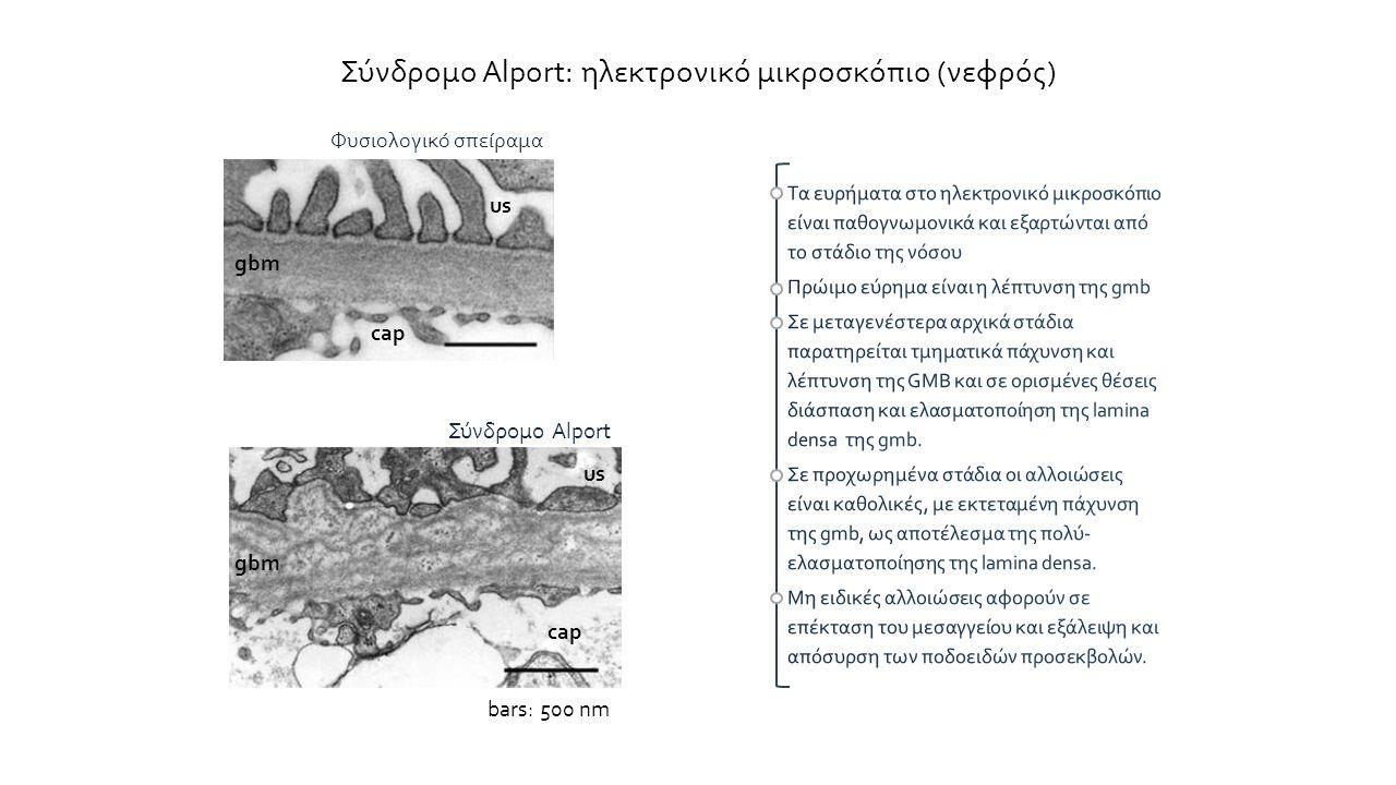 Σύνδρομο Alport: ηλεκτρονικό μικροσκόπιο (νεφρός)