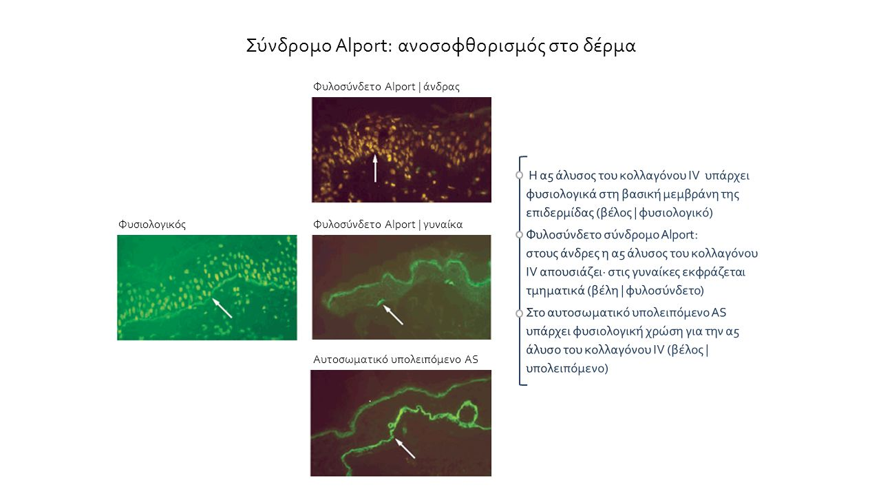 Σύνδρομο Alport: ανοσοφθορισμός στο δέρμα