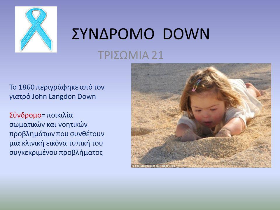 ΣΥΝΔΡΟΜΟ DOWN ΤΡΙΣΩΜΙΑ 21