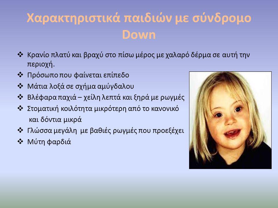 Χαρακτηριστικά παιδιών με σύνδρομο Down