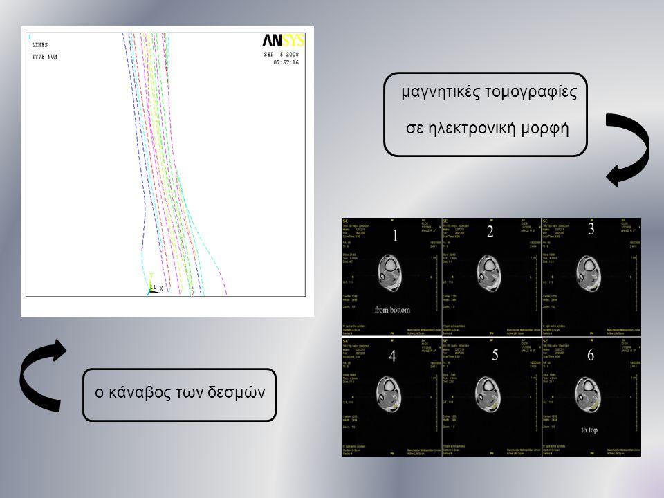 μαγνητικές τομογραφίες