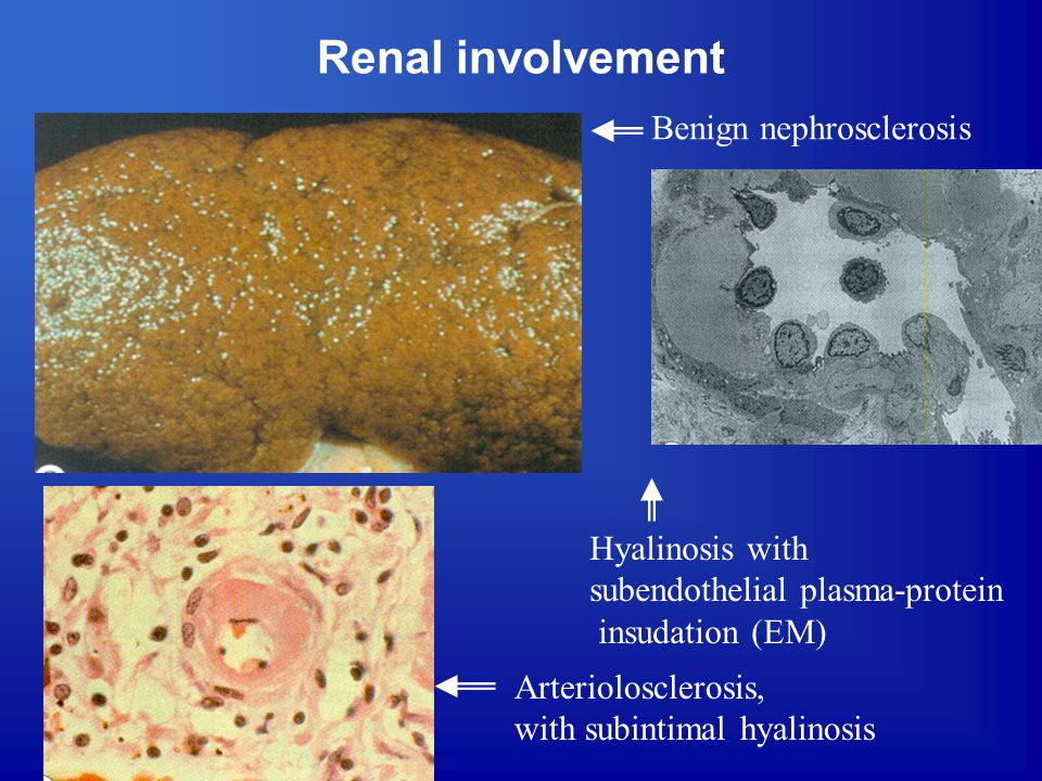 Renal involvement Benign nephrosclerosis Hyalinosis with