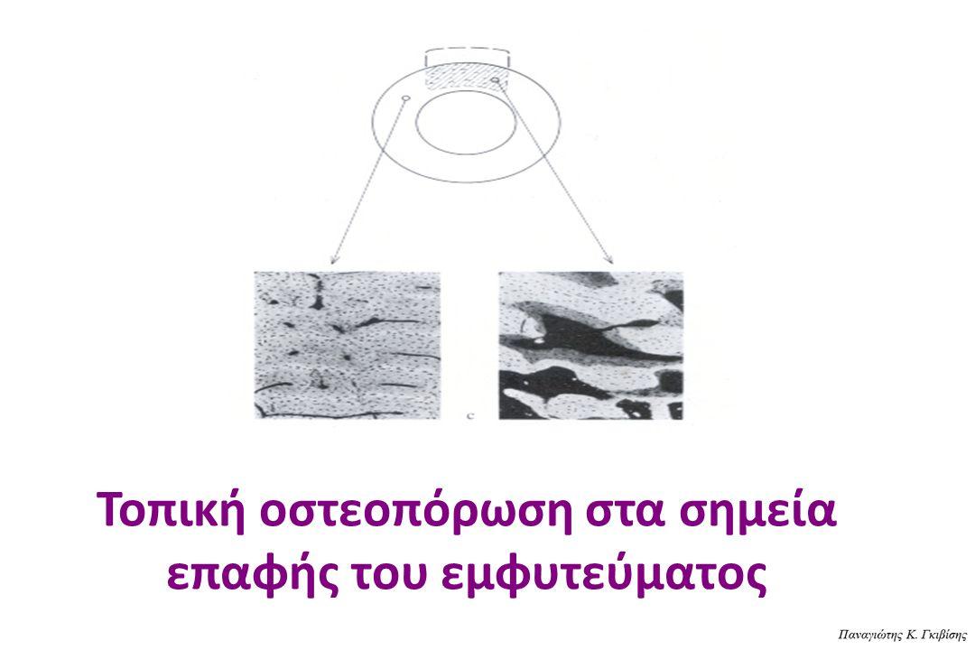 Τοπική οστεοπόρωση στα σημεία επαφής του εμφυτεύματος