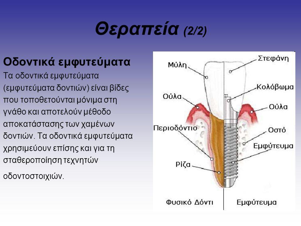 Θεραπεία (2/2) Οδοντικά εμφυτεύματα Τα οδοντικά εμφυτεύματα
