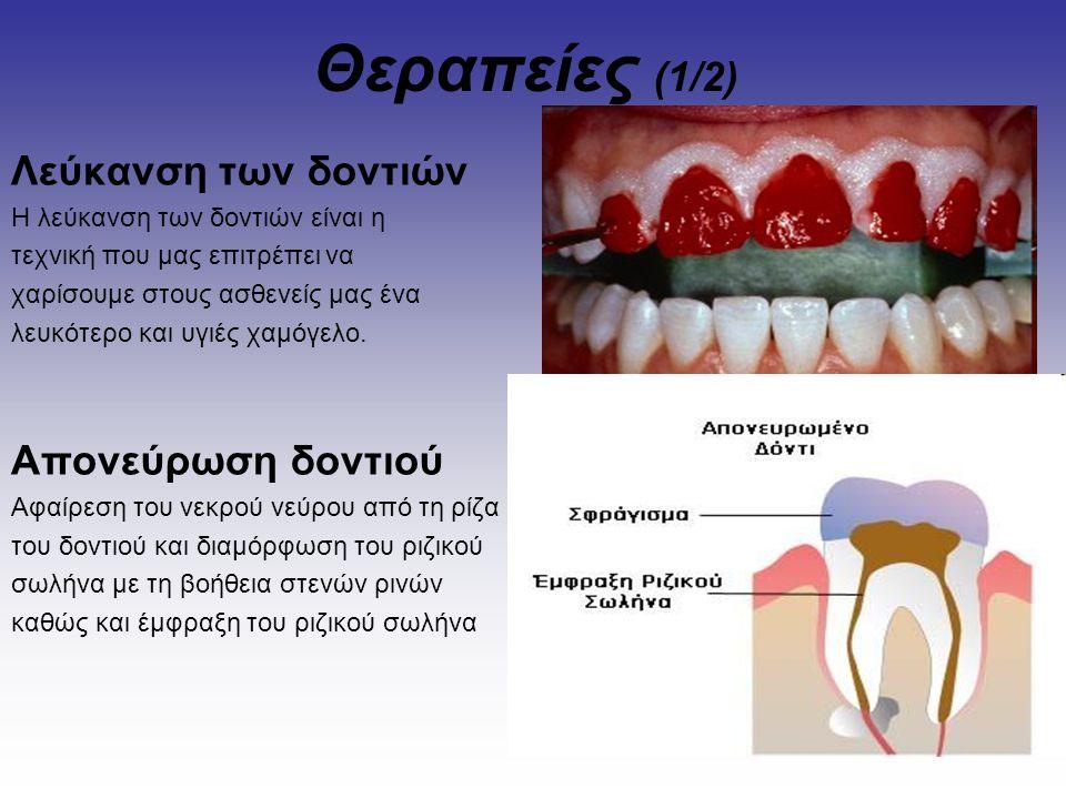 Θεραπείες (1/2) Λεύκανση των δοντιών Απονεύρωση δοντιού