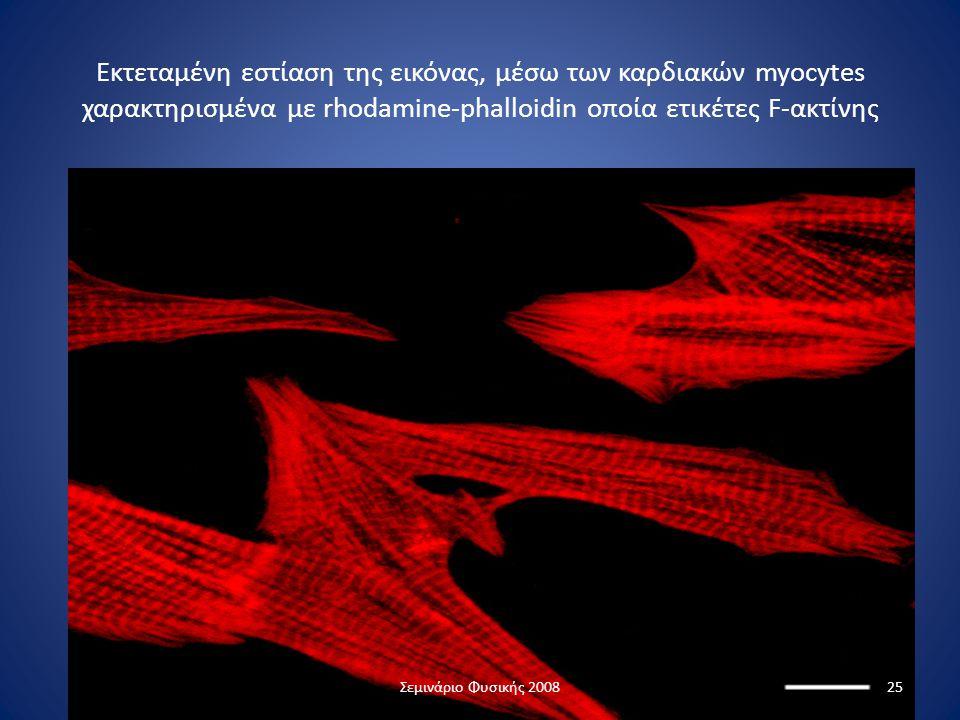 Εκτεταμένη εστίαση της εικόνας, μέσω των καρδιακών myocytes χαρακτηρισμένα με rhodamine-phalloidin οποία ετικέτες F-ακτίνης