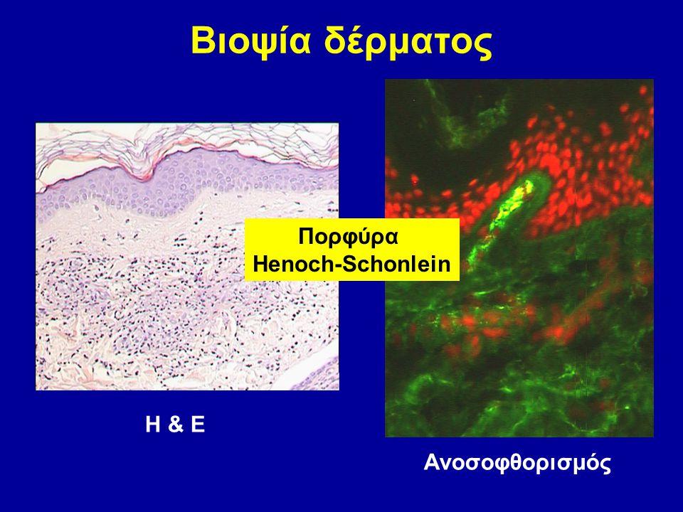 Βιοψία δέρματος Πορφύρα Henoch-Schonlein Η & Ε Ανοσοφθορισμός
