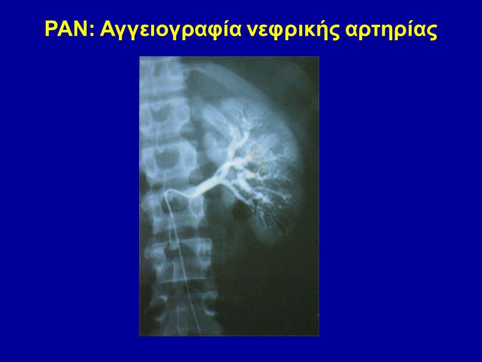 ΡΑΝ: Αγγειογραφία νεφρικής αρτηρίας