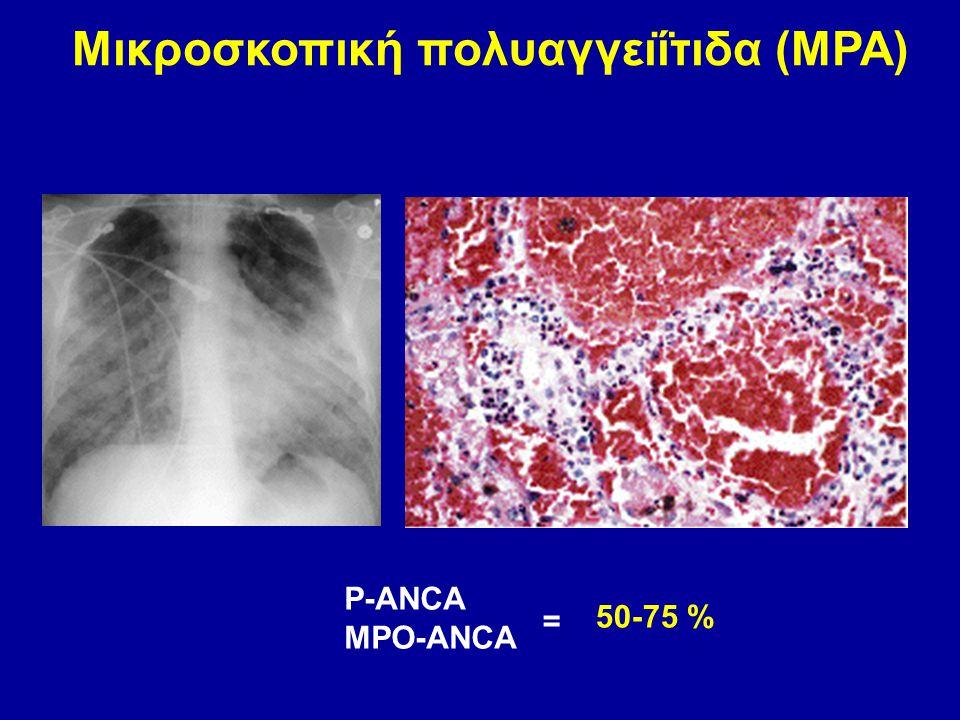 Μικροσκοπική πολυαγγειΐτιδα (MPA)