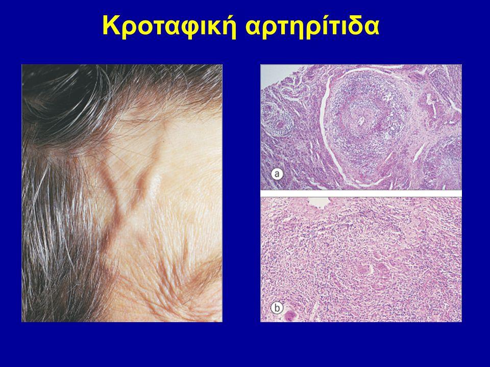 Κροταφική αρτηρίτιδα