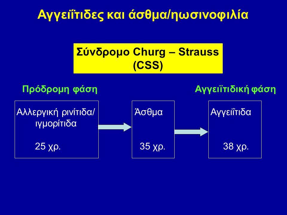 Αγγειΐτιδες και άσθμα/ηωσινοφιλία Σύνδρομο Churg – Strauss