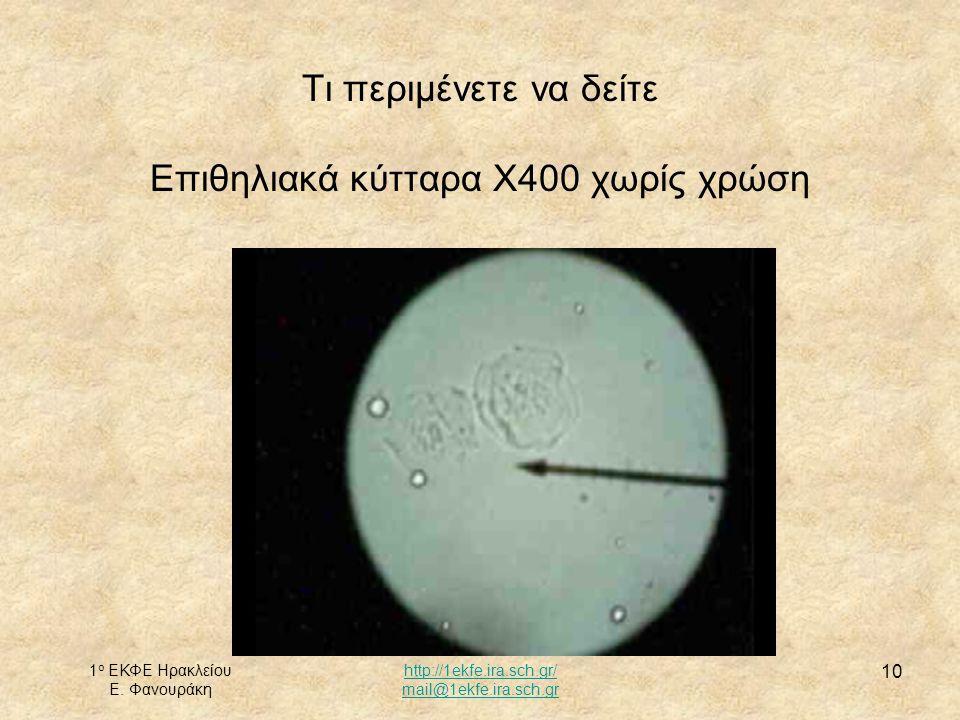 Τι περιμένετε να δείτε Επιθηλιακά κύτταρα X400 χωρίς χρώση
